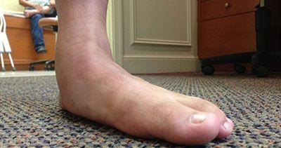 درباره صافی کف پا چه می دانید؟