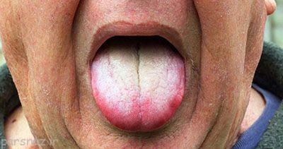 درمان سوختگی زبان با خوردن غذای داغ