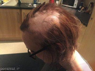 موی این دختر به خاطر استرس امتحان ریخت +عکس