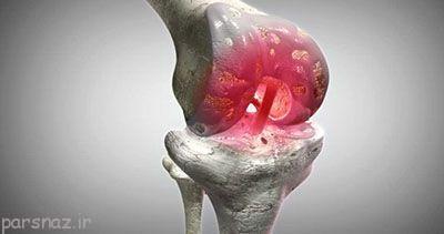 بیماری آرتروز زانو درمان نمی شود