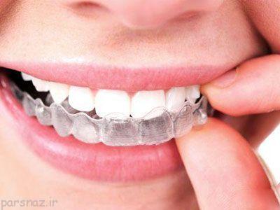 درباره ارتودنسی مخفی دندان ها بیشتر بدانیم