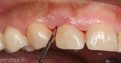 کارهایی که برای دندان مضر هستند