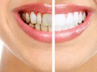 لکه های روی دندان و روش های از بین بردن آن ها