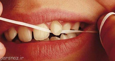 ادعای تازه پزشکان نخ دندان مفید نیست