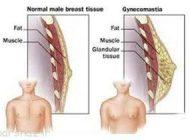انواع مشکلات در ناحیه پستان آقایان