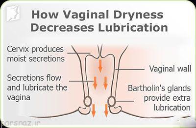 نرم و لطیف شدن واژن با این روش ها