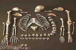 در جراحی های زیبایی از استخوان جسد استفاده می شود