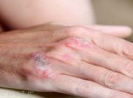 پسوریازیس و بیماری هایی که در پی آن می آیند