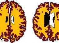 چاق بودن باعث می شود مغز ما 10 سال پیر شود