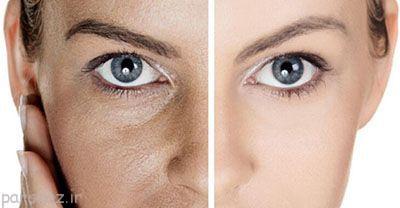 زیبایی پوست با کاهش منافذ آن