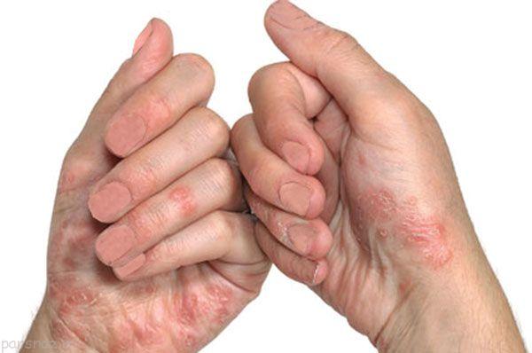 بیماری پسوریازیس و توصیه های سلامتی