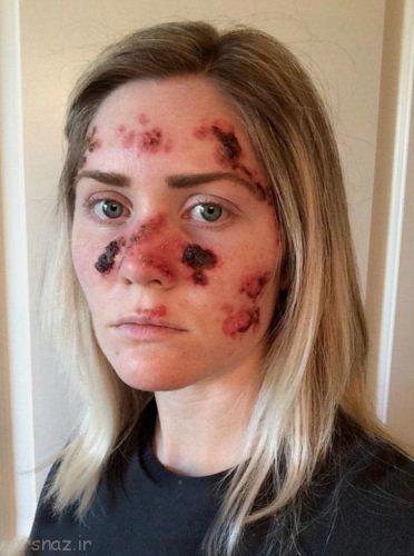 این زن پوست خود را برنزه کرد و سرطان گرفت