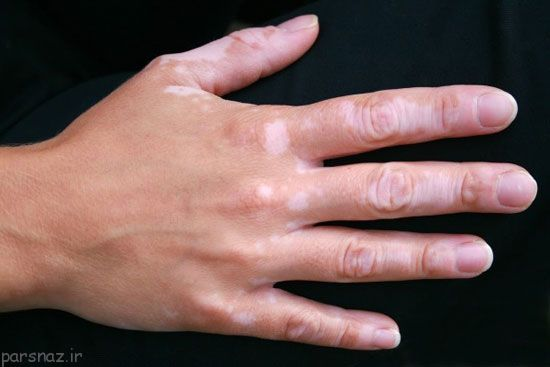 درباره بیماری لک و پیسی در افراد