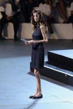لاغرترین دختر دنیا در بدن خود چربی ندارد