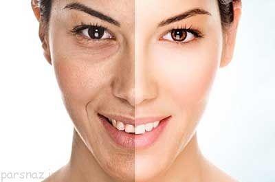نکاتی درباره بوتاکس کردن پوست