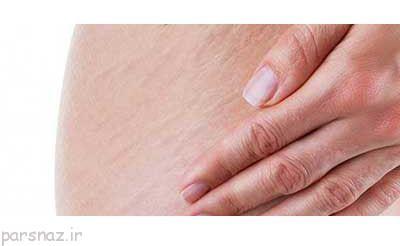وقتی پوست بدن دچار ترک می شود