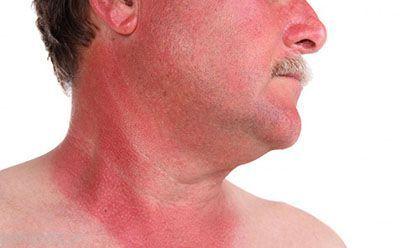 راه چاره آفتاب سوختگی در چیست؟