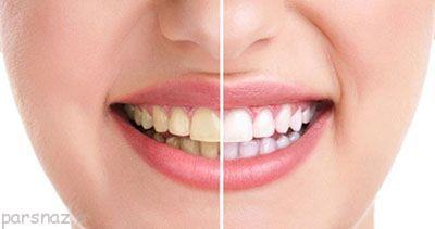 دندان زرد را این گونه سفید کنید