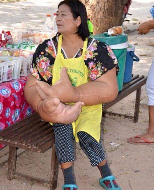 دستان بزرگ این زن تایلندی رسانه ای شد