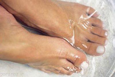 میخچه پا و راه درمان برای آن
