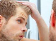 ریزش موی سر در مردان و راهکار