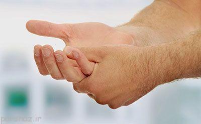 امان از عرق کردن کف دست ها