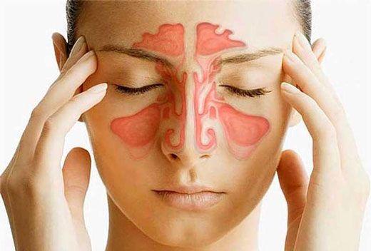 با بیماری سینوزیت مقابله کنید