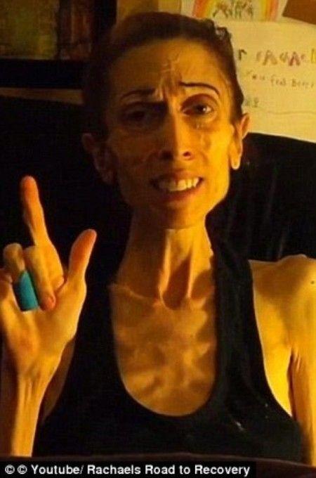 اندام دختر لاغر 20 کیلویی و عاقبت کارش +عکس