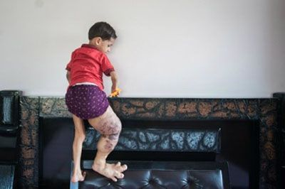 پای عجیب این پسر کوچک را ببینید +عکس