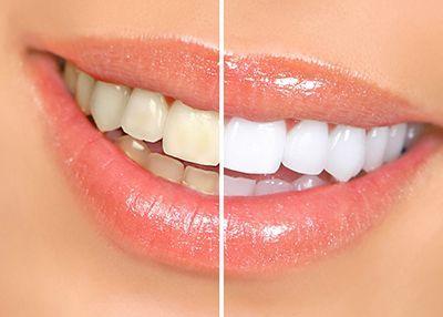 راز داشتن لبخند زیبا و جذاب به سبک زنان هالیوود