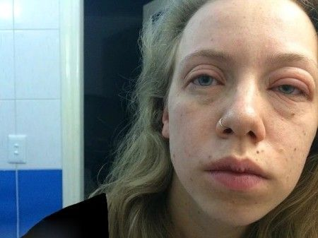 حساسیت های ترسناک روی صورت دختران