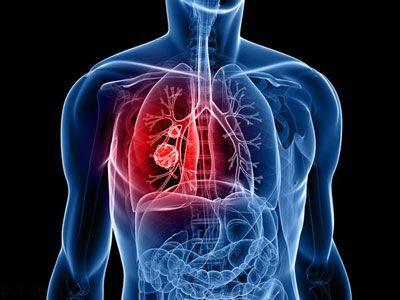 مراقب آمبولی ریه پس از زایمان باشید