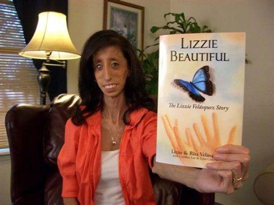لیزی زشت ترین دختر جهان همچنان مبارز