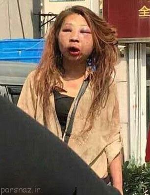 چهره این دختر زیبا را بعد از کتک خوردن ببینید