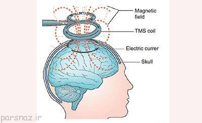 درمان بیماران افسرده با شوک الکتریکی مغز