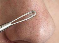 تخلیه منافذ پوستی با روش درست و کاربردی