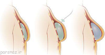 عوارض پروتز سینه در خانم ها