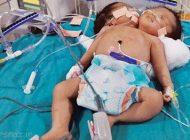 عاقبت دردناک نوزاد دوکله را ببینید