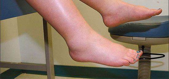 آیا بعد از ورزش پای شما باد و ورم می کند؟