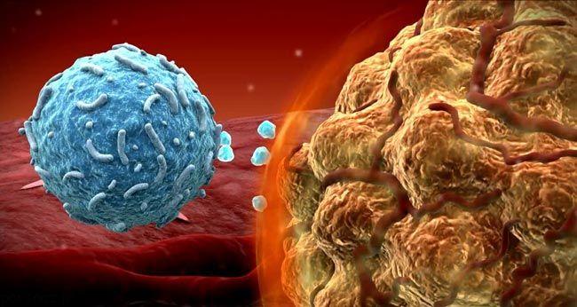 علامت های سرطان در بدن را بشناسید