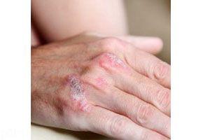 نشانه های خطر برای سلامت پوست