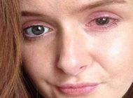 آسیب لنز تماسی به چشمان این دختر زیبا