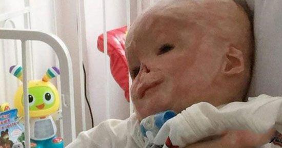سرنوشت وحشتناک نوزاد روی تخت نوردرمانی