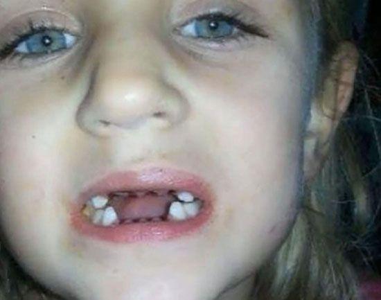 اتفاق وحشتناک برای پسر داخل مطب دندان پزشک
