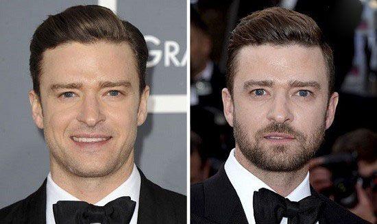 قبول کنید که مردان با ریش جذاب تر هستند