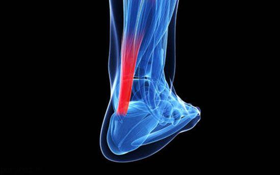 آسیب هاب بدنی در ورزش بدنسازی