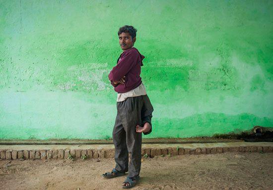 مرد عجیب هندی که چهارپا دارد +عکس