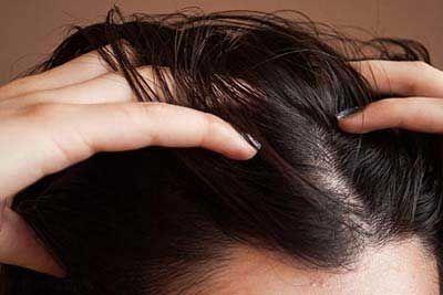 این کارها موی شما را چرب می کند