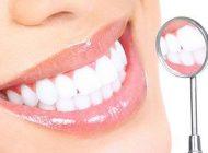 لمینت برای چه دندان هایی استفاده می شود؟