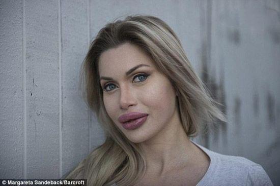 عدم رضایت این دختر پس از 100 عمل جراحی زیبایی
